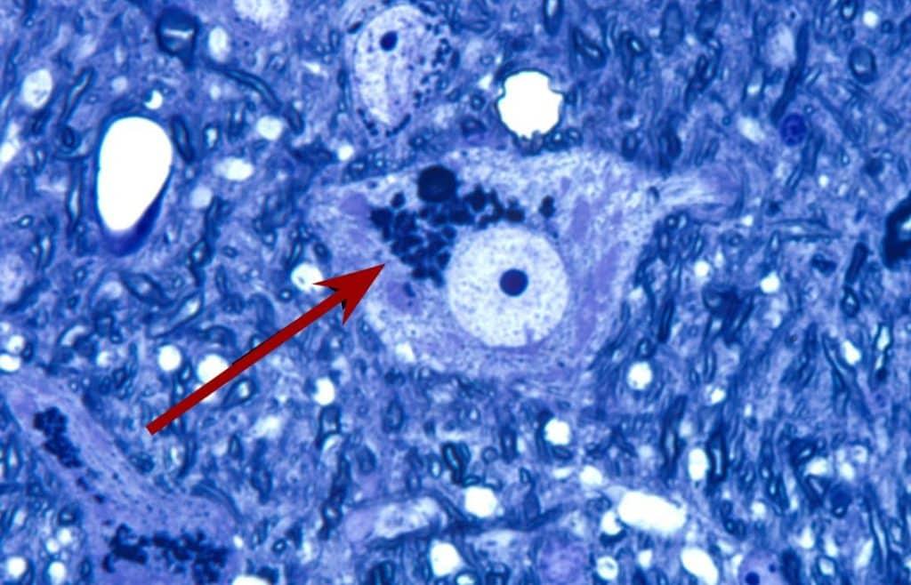 An accumulation of junk (lipofuscin granules) in a brain cell. Image Credit: Wikimedia